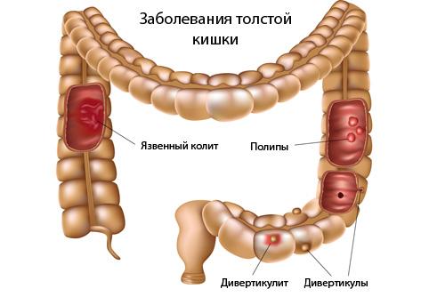 Лечение дивертикулеза толстого кишечника антибиотиками