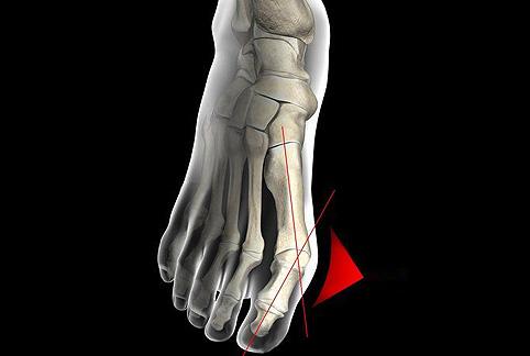 Пластырь для лечения косточек на ногах пластырь от вальгуса