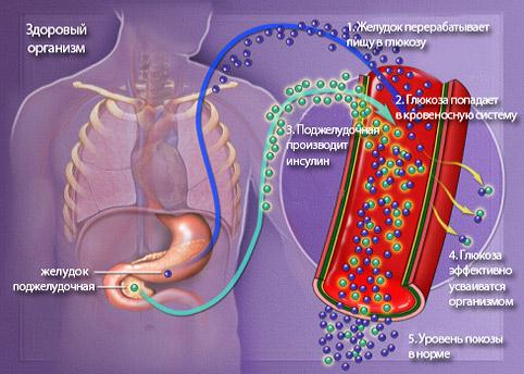 Несладкая» сахарная болезнь — ЗдоровьеИнфо
