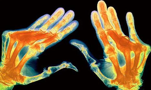 Артрит отступает под натиском генной инженерии — ЗдоровьеИнфо